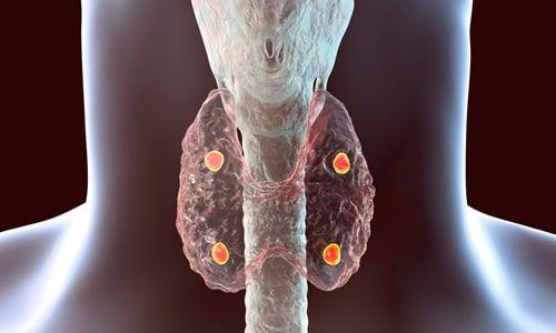Paratiroid Ameliyatlarında Sonra Ne Gibi İstenmeyen Yan Etkiler Ortaya Çıkabilir?