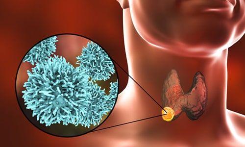 Tiroid Ameliyatı Sonrası Dikkat Edilmesi Gereken Konular?