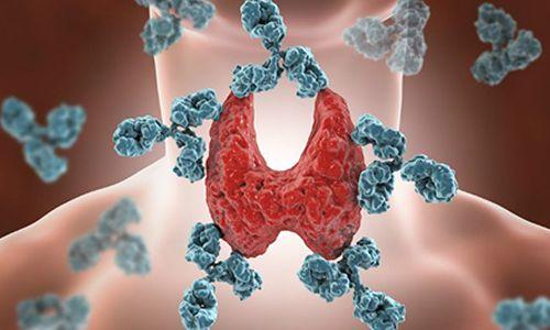 Haşimato Hastalığı (Hashimoto Tiroiditi)