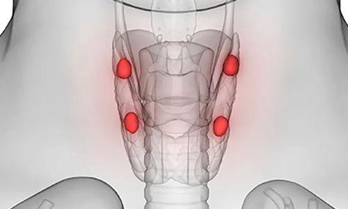 Paratiroid Bezi Hastalıklarında Tanı