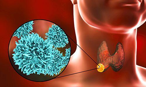 Tiroid Bezi Hastalıklarında Tanı Yöntemleri